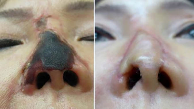 Hoại tử đầu mũi sau khi PTTM